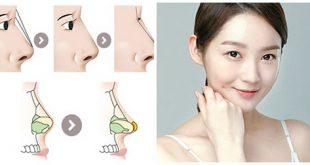 Chỉnh hình sống mũi sẽ giúp bạn có khuôn mặt hài hòa hơn