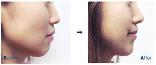 Phương pháp làm đầy má hóp sẽ giúp bạn có gương mặt đầy đặn theo ý muốn