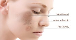 Tổn thương sắc tố da khiến bạn bị nám, tàn nhang hoặc đốm nâu