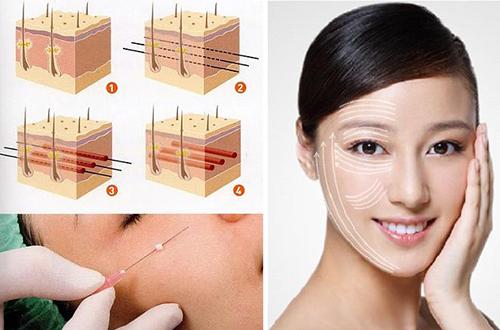 Căng da  mặt bằng chỉ mang lại hiệu quả cao