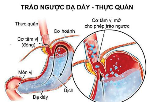 Cách chữa bệnh trào ngược dạ dày