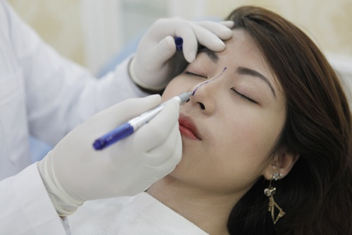 Phẫu thuật thẫm mỹ mũi và những điều cần phải cân nhắc