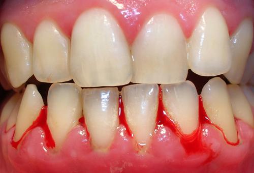 Bác sĩ cảnh báo chảy máu chân răng là dấu hiệu của ung thư máu