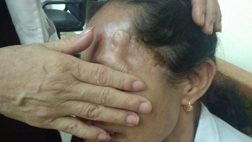 Bà Phượng với 2 vết sẹo chạy dọc thái dương do mổ 2 lần sọ