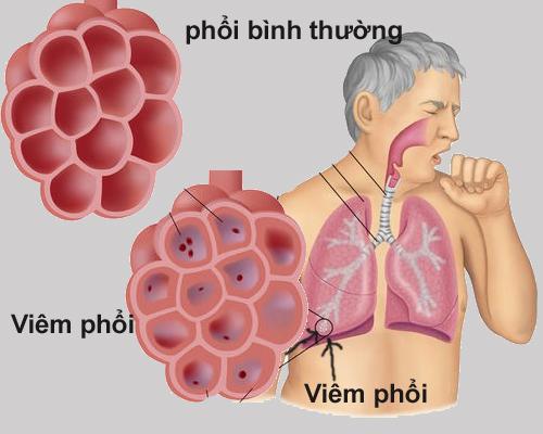 viem-phoi-3