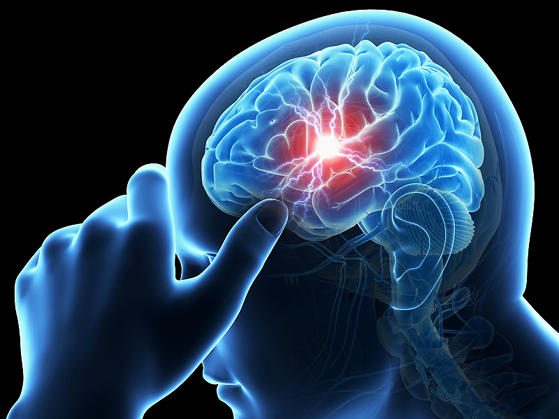 Những lưu ý cần thiết khi sử dụng thuốc tuần hoàn não