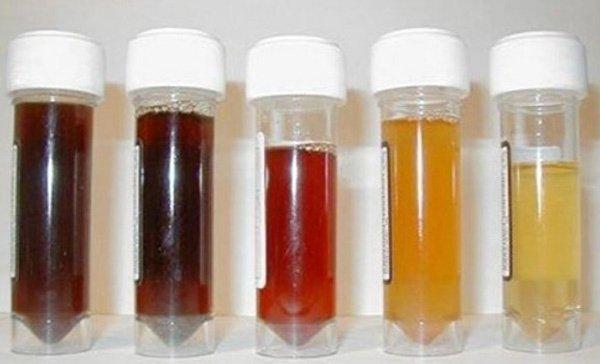 Nước tiểu có mùi, màu sắc khác thường cảnh báo bệnh nguy hiểm