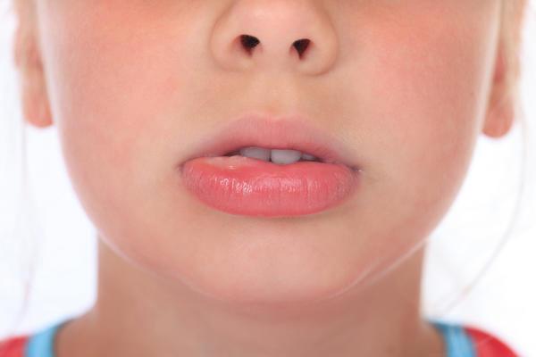 Bệnh nhiệt miệng là gì