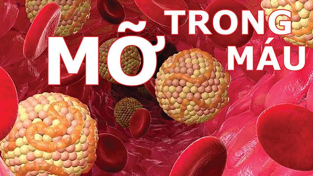 Lượng mỡ trong máu tăng cao nguyên nhân gây đột quỵ
