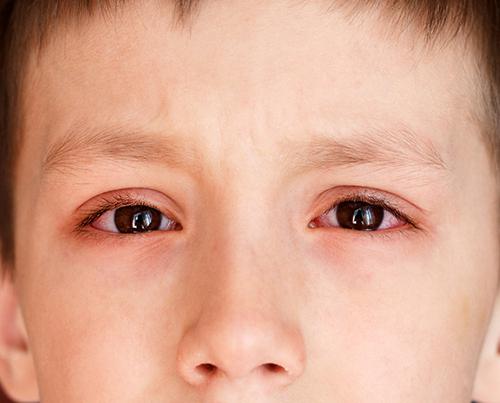 Đau mắt đỏ là bệnh thường gặp và rất phổ biến đặc biệt vào mùa mưa