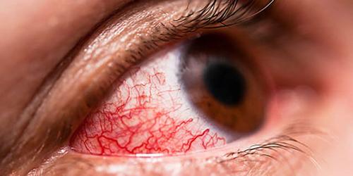Dấu hiệu của bệnh là mắt đỏ lên, đặc biệt với trẻ nhỏ có thể kèm theo tình trạng sốt nhẹ