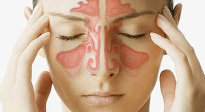 Tìm hiểu bài thuốc chữa bệnh viêm xoang