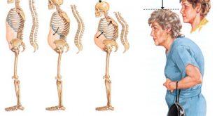 Phương pháp điều trị bệnh loãng xương ở phụ nữ sau thời kỳ mãn kinh