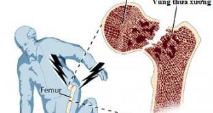 Bệnh loãng xương dễ gây ra tình trạng loãng xương