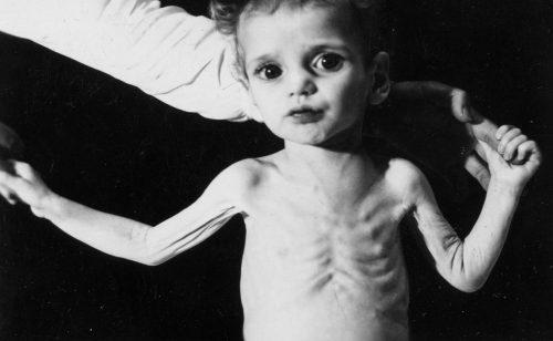 Bệnh loãng xương xảy ra ở trẻ em