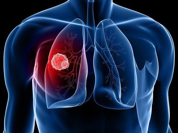 Ung thư phổi có tỷ lệ tử vong cao