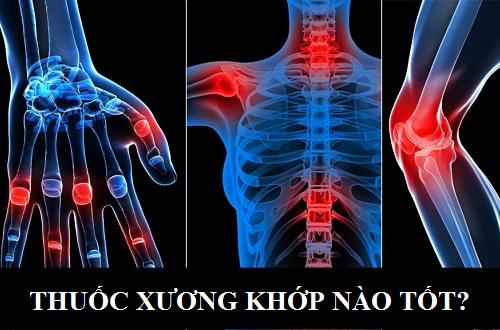 Điều trị Bệnh viêm xương khớp hiệu quả bằng loại thuốc nào?