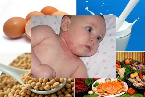 Trẻ nhỏ là đối tượng rất dễ bị dị ứng thực phẩm