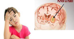 Nguyên nhân nào dẫn tới căn bệnh ung thư Não?