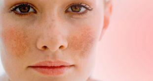 Nám da có rất nhiều nguyên nhân mà bạn phải biết để điều trị đúng