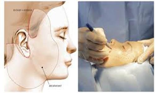 Quy trình phẫu thuật căng da mặt nội soi được thực hiện theo đúng sơ đồ đã vạch ra