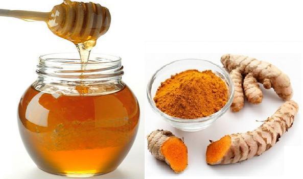 Bài thuốc trị viêm đại tràng bằng mật ong và nghệ tươi