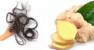 Cải thiện tình trạng rụng tóc nhờ một số bài thuốc Y học Cổ truyền