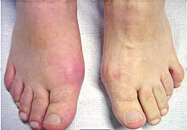Điều trị bệnh gout