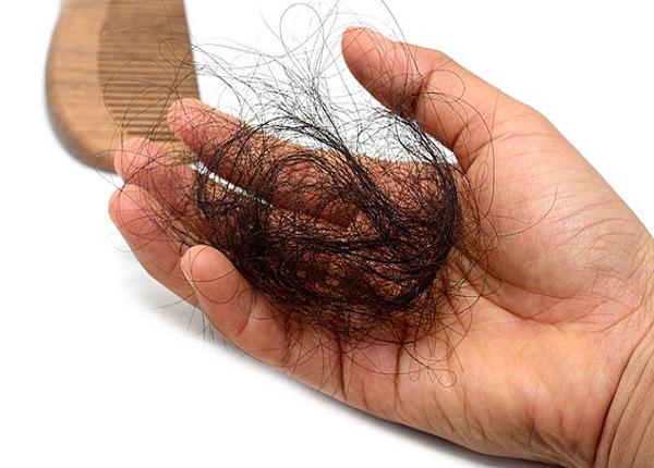 <center><em>Có nhiều nguyên nhân gây rụng tóc</em></center>